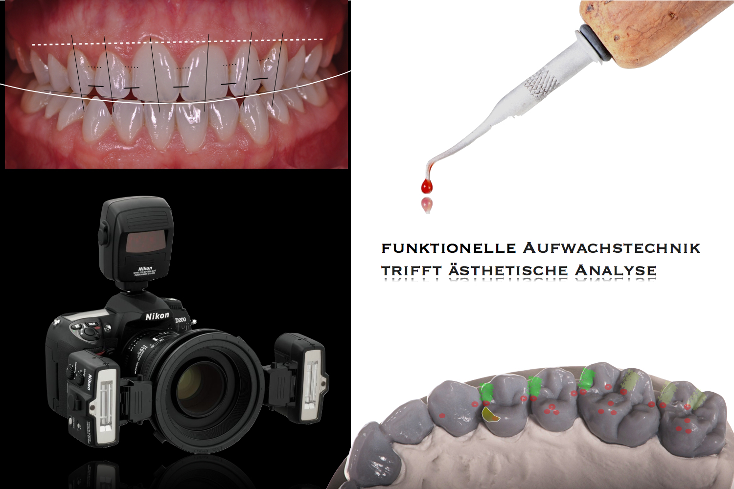 dental photography meets waxing technique