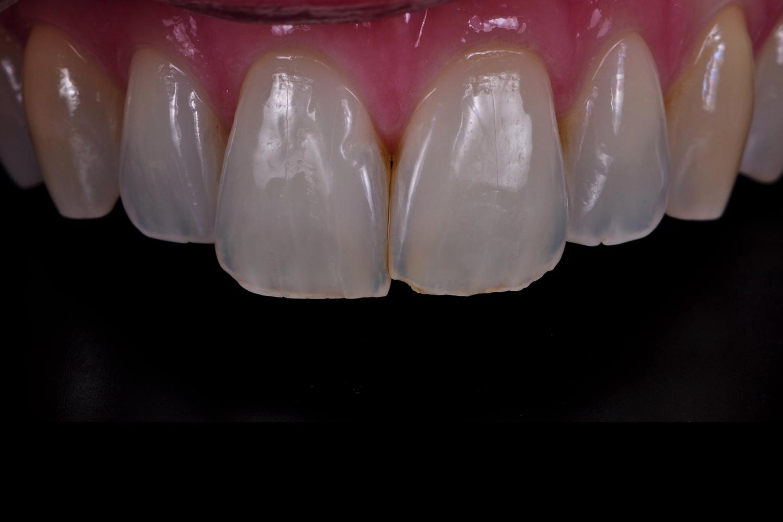 Dental documentation - Dental photografie Training