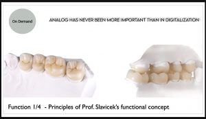 Function & Occlusion Part 1/4 – Basic principles of Prof. Slavicek's functional concept