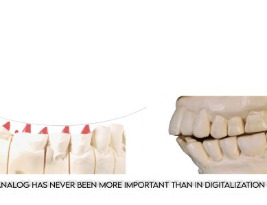 """Part 3 – The """"so-called"""" malocclusion"""
